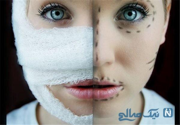 عوارض جراحی زیبایی بینی که ناخوانسته ایجاد می شود