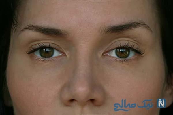 افتادگی پلک بالا | راههای درمان و پیشگیری برای زیبایی چشم
