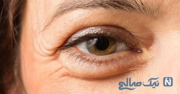 درمان چشم پف دار