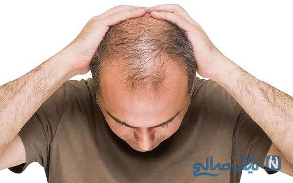 نکاتی مهمی که قبل از کاشت مو باید بدانید