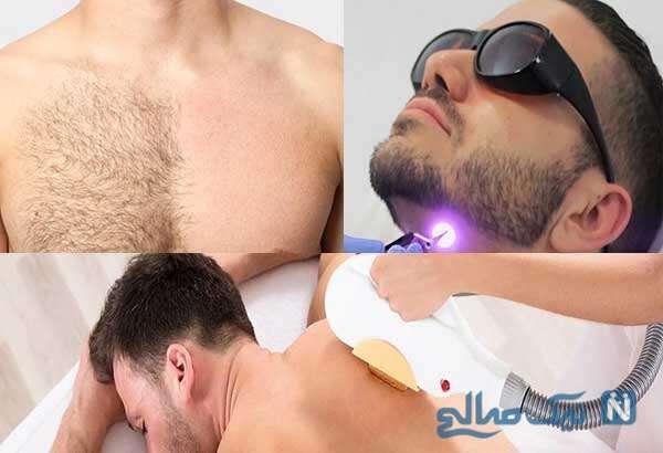 معرفی خدمات لیزر مردان برای نواحی مختلف بدن